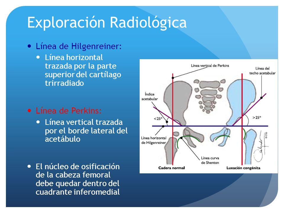 Exploración Radiológica Línea de Hilgenreiner: Línea horizontal trazada por la parte superior del cartílago trirradiado Línea de Perkins: Línea vertic
