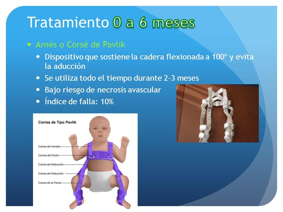 Arnés o Corsé de Pavlik Dispositivo que sostiene la cadera flexionada a 100º y evita la aducción Se utiliza todo el tiempo durante 2-3 meses Bajo ries