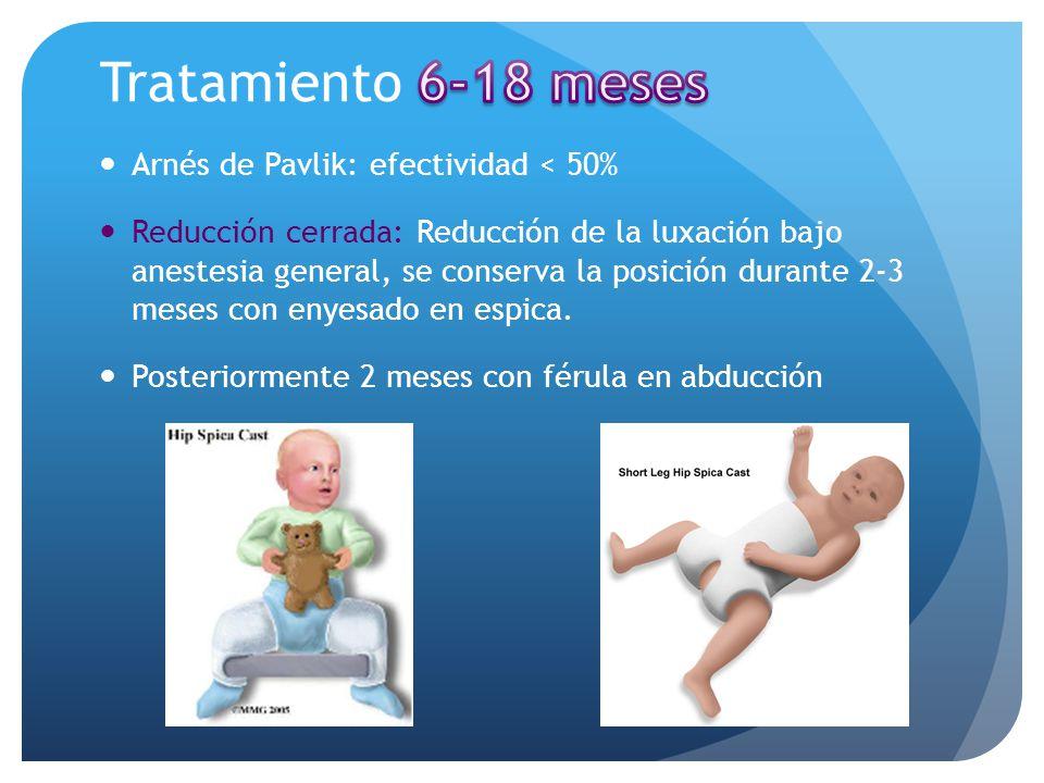 Arnés de Pavlik: efectividad < 50% Reducción cerrada: Reducción de la luxación bajo anestesia general, se conserva la posición durante 2-3 meses con e
