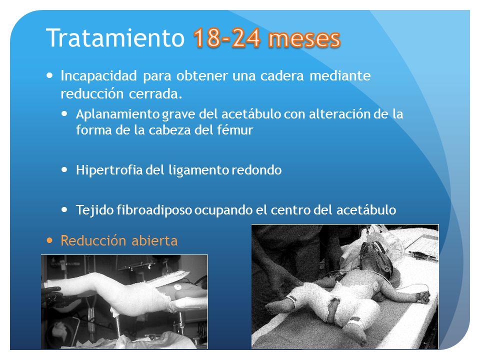 Incapacidad para obtener una cadera mediante reducción cerrada. Aplanamiento grave del acetábulo con alteración de la forma de la cabeza del fémur Hip