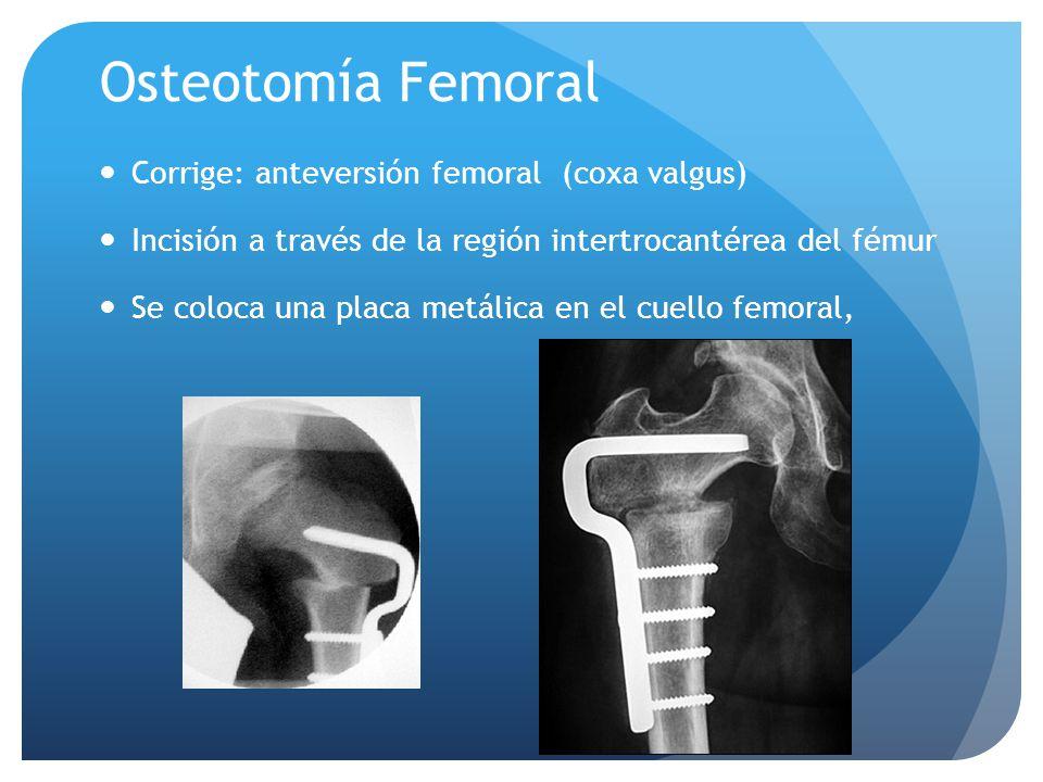 Osteotomía Femoral Corrige: anteversión femoral (coxa valgus) Incisión a través de la región intertrocantérea del fémur Se coloca una placa metálica e