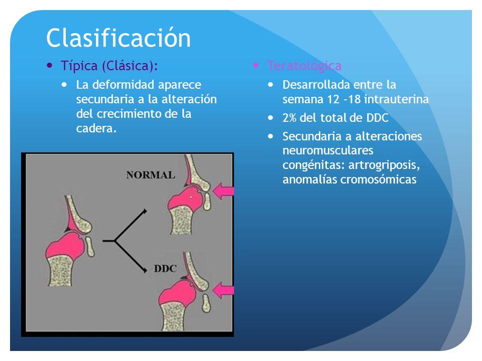 Exploración Física Maniobra de Klisic Se traza una línea imaginaria que une al trocánter mayor y la espina iliaca antero-superior, en condiciones normales debe apuntar al ombligo Positiva: En la cadera luxada la línea pasa por debajo del ombligo.