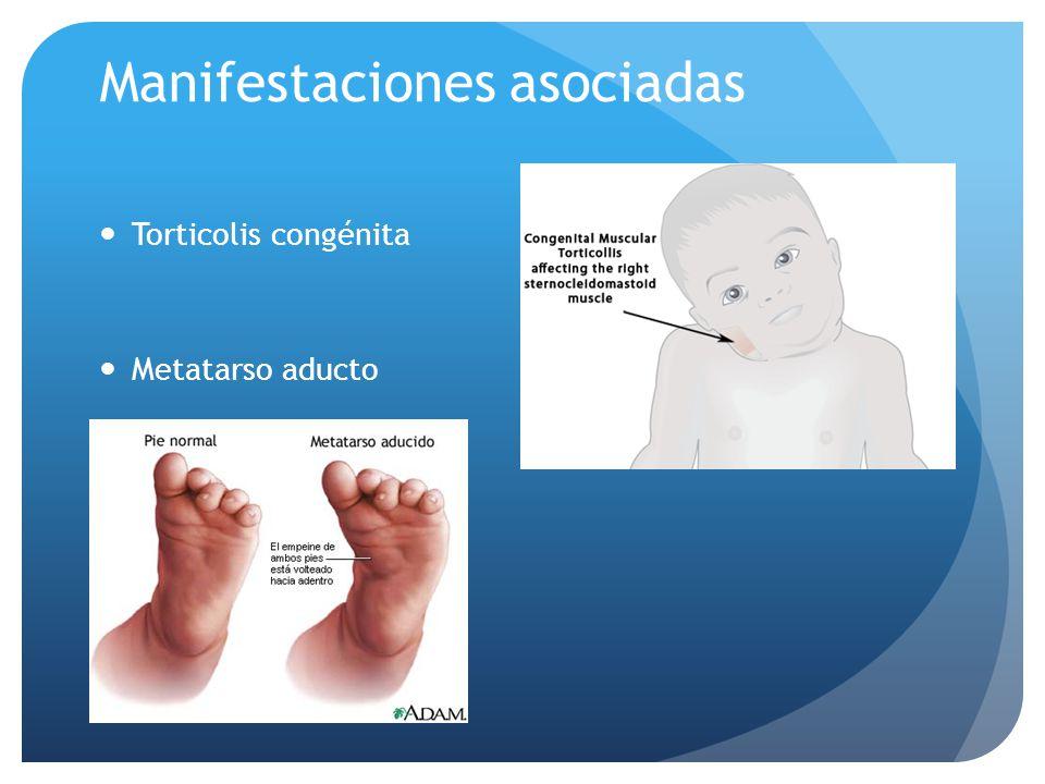 Manifestaciones asociadas Torticolis congénita Metatarso aducto