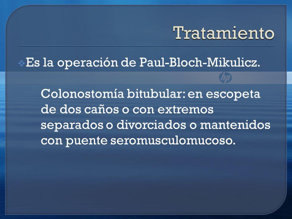 Es la operación de Paul-Bloch-Mikulicz.