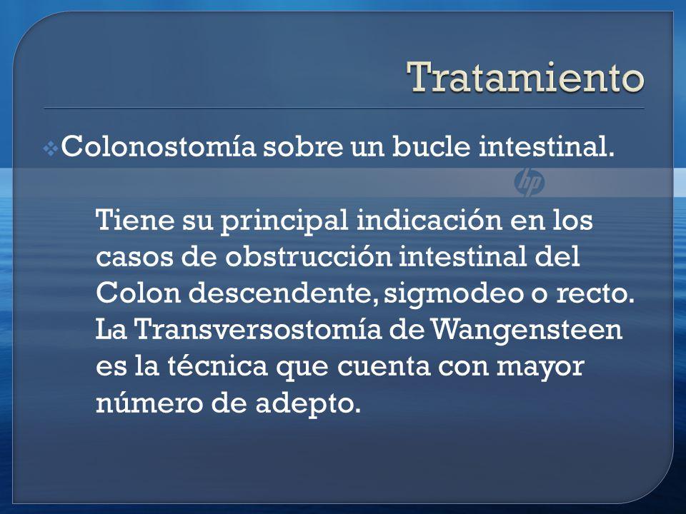 Colonostomía sobre un bucle intestinal.