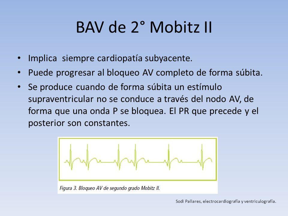 BAV de 2° Mobitz II Implica siempre cardiopatía subyacente. Puede progresar al bloqueo AV completo de forma súbita. Se produce cuando de forma súbita