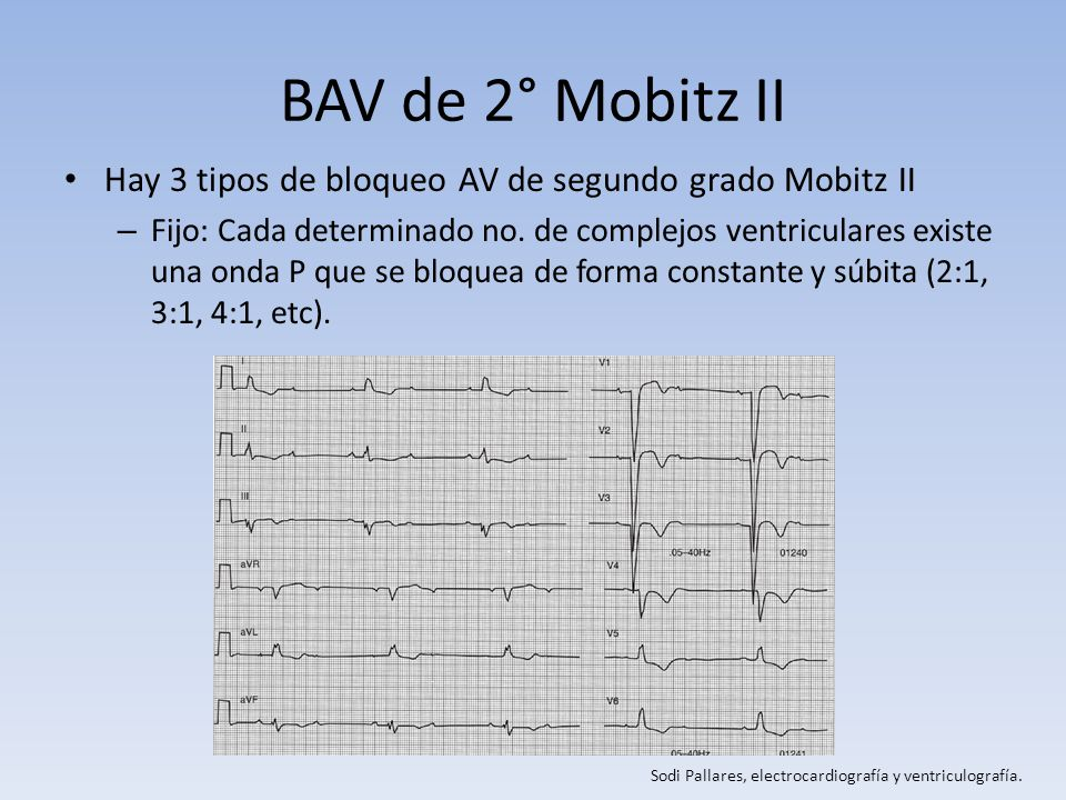 BAV de 2° Mobitz II Hay 3 tipos de bloqueo AV de segundo grado Mobitz II – Fijo: Cada determinado no. de complejos ventriculares existe una onda P que