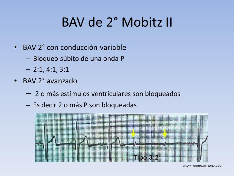 BAV de 2° Mobitz II BAV 2° con conducción variable – Bloqueo súbito de una onda P – 2:1, 4:1, 3:1 BAV 2° avanzado – 2 o más estímulos ventriculares so