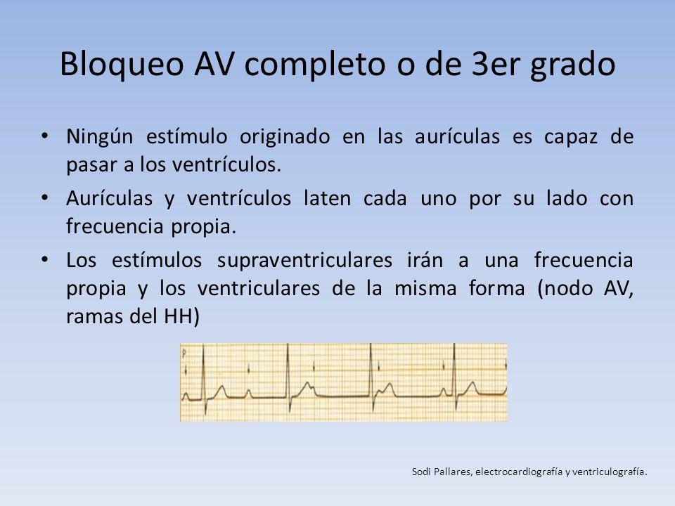 Bloqueo AV completo o de 3er grado Ningún estímulo originado en las aurículas es capaz de pasar a los ventrículos. Aurículas y ventrículos laten cada