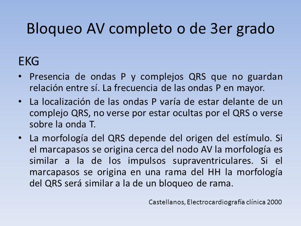 Bloqueo AV completo o de 3er grado EKG Presencia de ondas P y complejos QRS que no guardan relación entre sí. La frecuencia de las ondas P en mayor. L