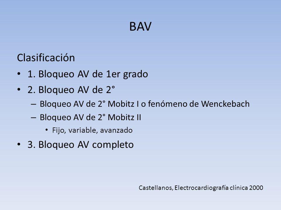 BAV Clasificación 1. Bloqueo AV de 1er grado 2. Bloqueo AV de 2° – Bloqueo AV de 2° Mobitz I o fenómeno de Wenckebach – Bloqueo AV de 2° Mobitz II Fij