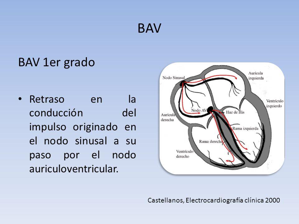 BAV BAV 1er grado Retraso en la conducción del impulso originado en el nodo sinusal a su paso por el nodo auriculoventricular. Castellanos, Electrocar