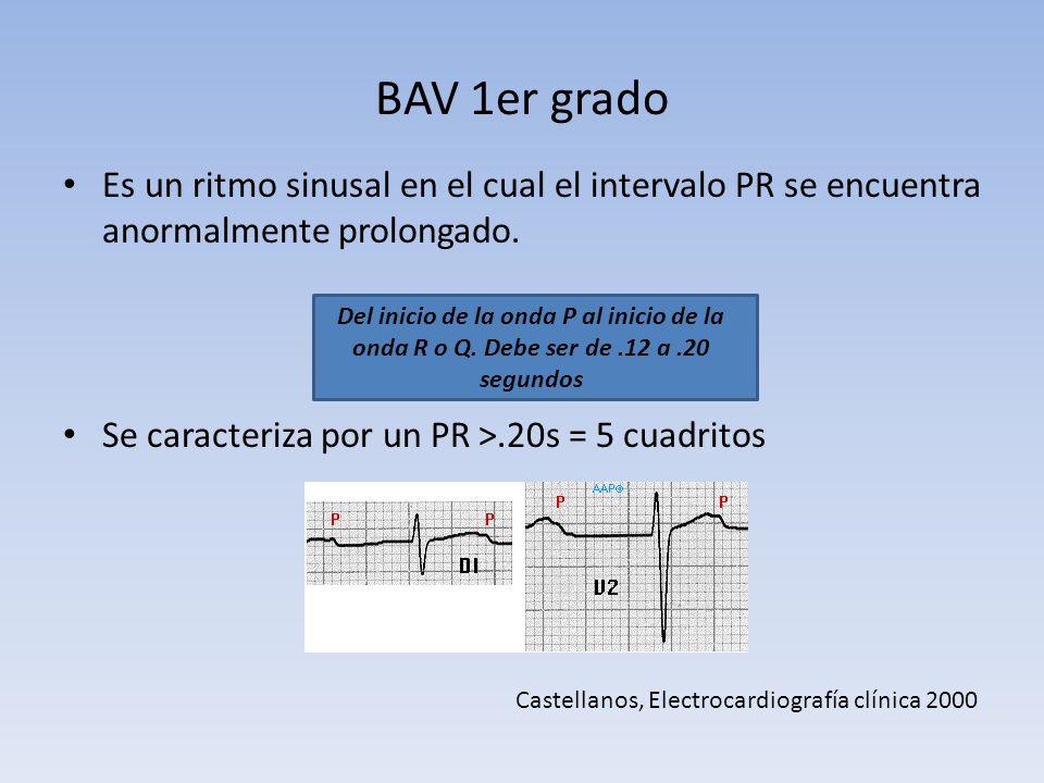 BAV 1er grado Es un ritmo sinusal en el cual el intervalo PR se encuentra anormalmente prolongado. Se caracteriza por un PR ˃.20s = 5 cuadritos Del in