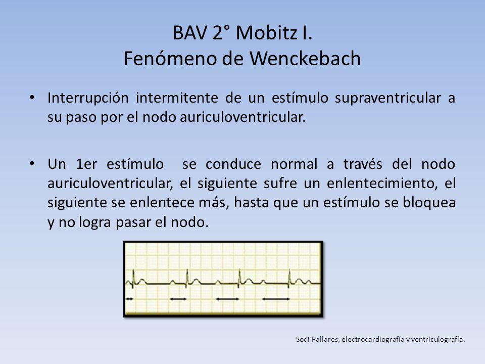 BAV 2° Mobitz I. Fenómeno de Wenckebach Interrupción intermitente de un estímulo supraventricular a su paso por el nodo auriculoventricular. Un 1er es