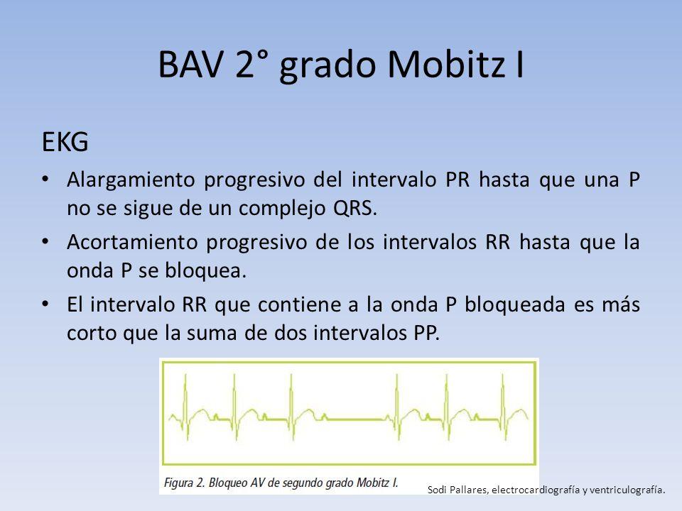 BAV 2° grado Mobitz I EKG Alargamiento progresivo del intervalo PR hasta que una P no se sigue de un complejo QRS. Acortamiento progresivo de los inte