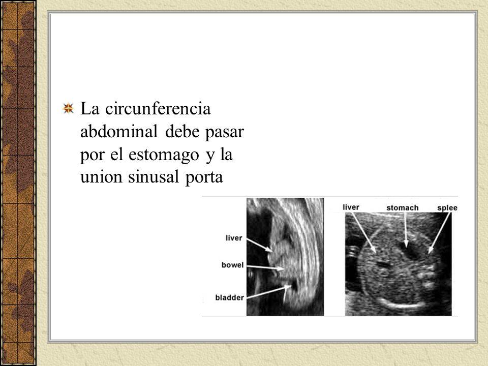 La circunferencia abdominal debe pasar por el estomago y la union sinusal porta