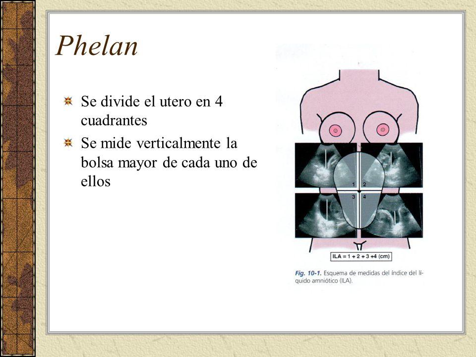 Se divide el utero en 4 cuadrantes Se mide verticalmente la bolsa mayor de cada uno de ellos