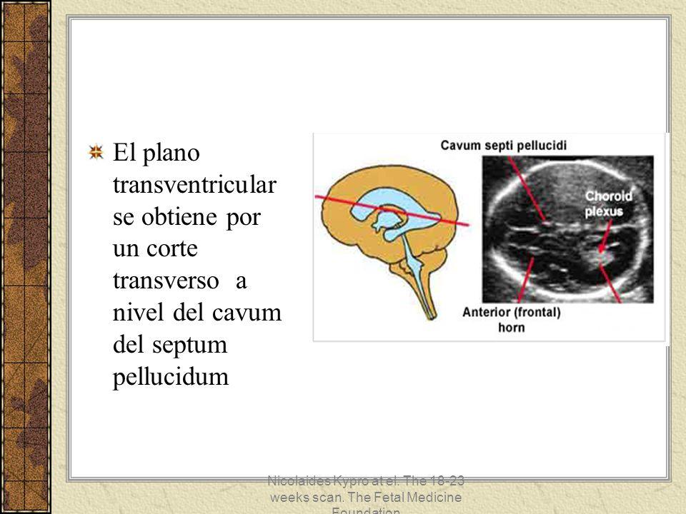 El plano transventricular se obtiene por un corte transverso a nivel del cavum del septum pellucidum Nicolaides Kypro at el. The 18-23 weeks scan. The
