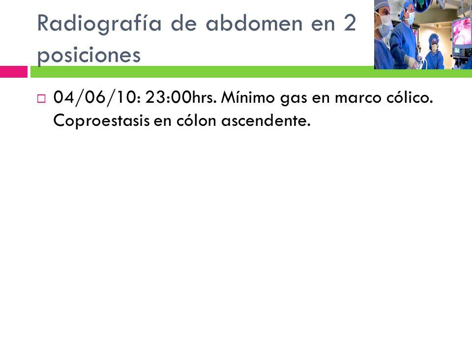 Radiografía de abdomen en 2 posiciones 04/06/10: 23:00hrs. Mínimo gas en marco cólico. Coproestasis en cólon ascendente.
