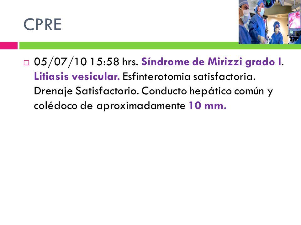 05/07/10 15:58 hrs. Síndrome de Mirizzi grado I. Litiasis vesicular. Esfinterotomia satisfactoria. Drenaje Satisfactorio. Conducto hepático común y co