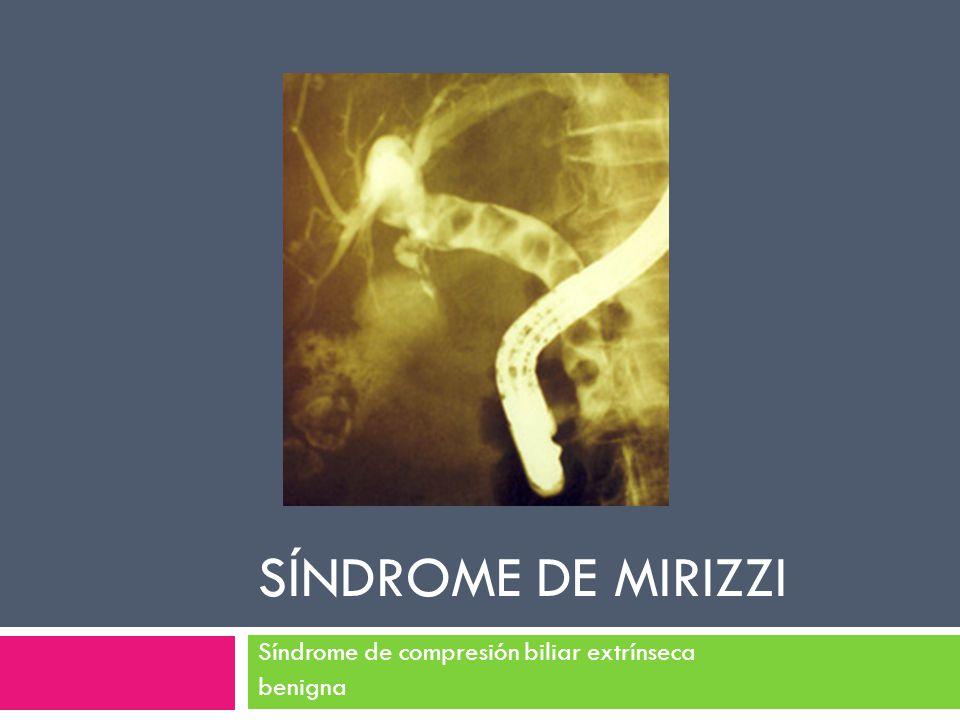 SÍNDROME DE MIRIZZI Síndrome de compresión biliar extrínseca benigna