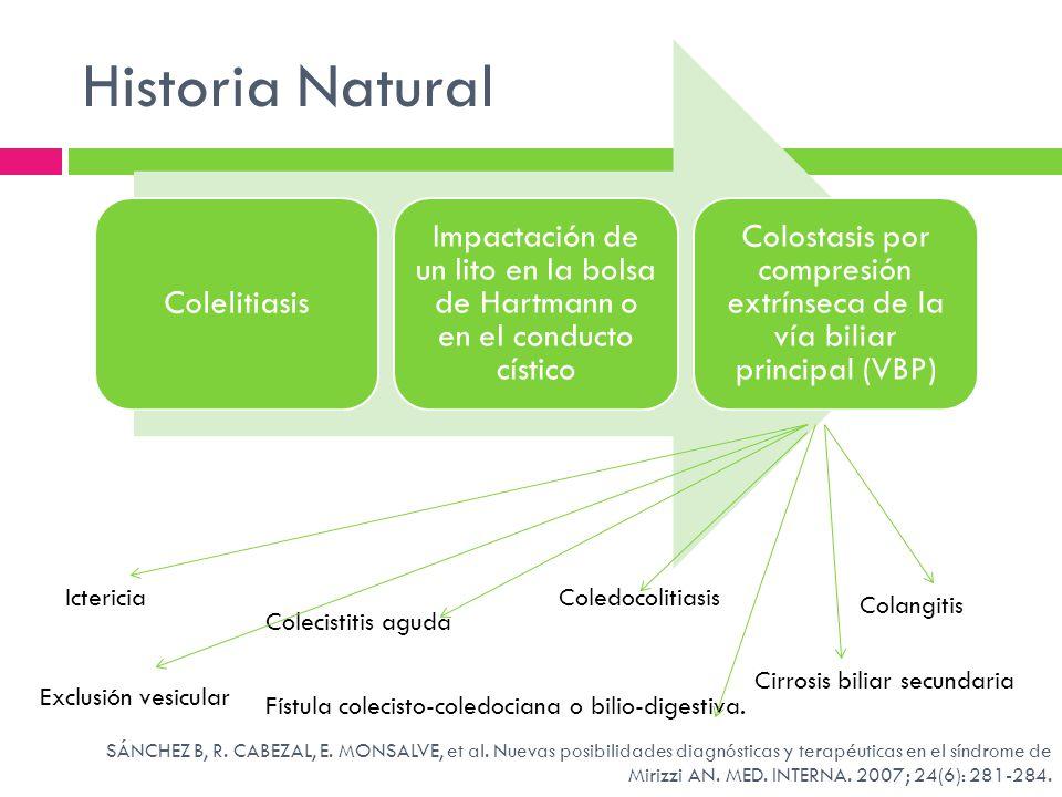 Historia Natural Colelitiasis Impactación de un lito en la bolsa de Hartmann o en el conducto cístico Colostasis por compresión extrínseca de la vía b
