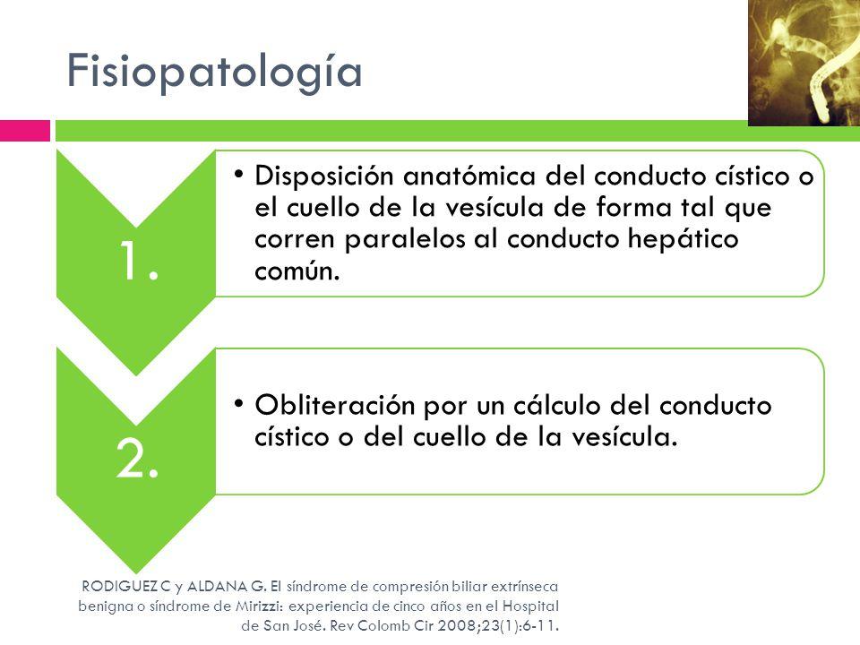 Fisiopatología 1. Disposición anatómica del conducto cístico o el cuello de la vesícula de forma tal que corren paralelos al conducto hepático común.