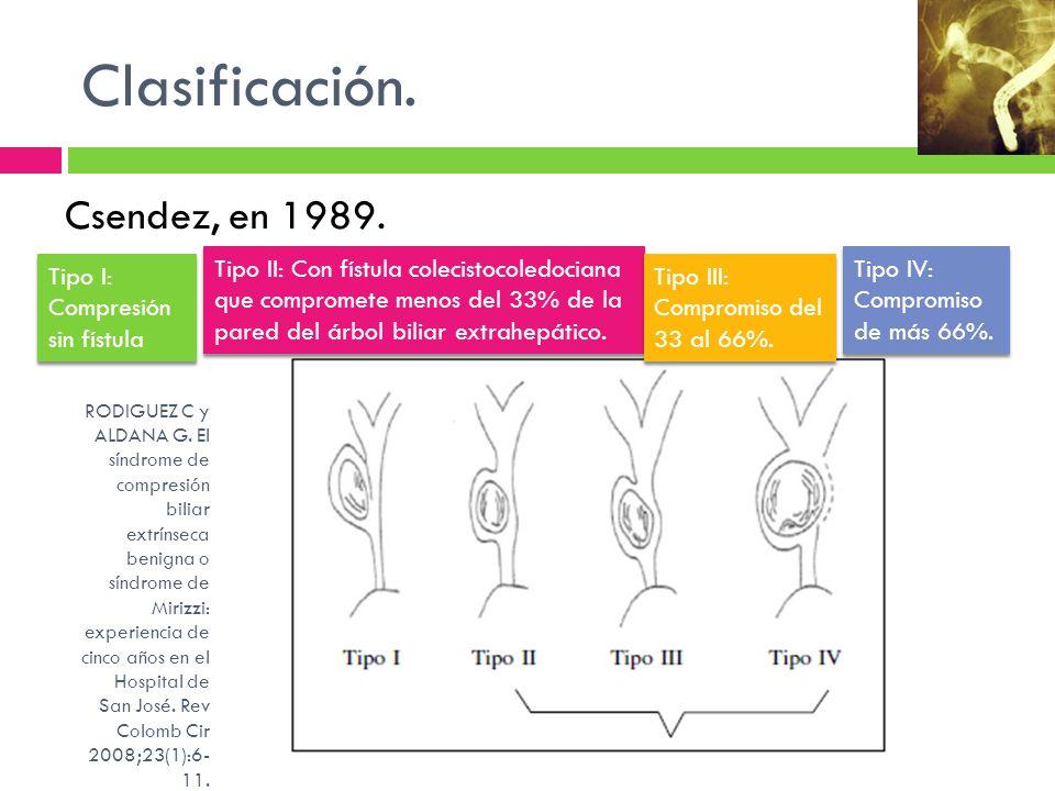 Clasificación. Csendez, en 1989. Tipo I: Compresión sin fístula Tipo II: Con fístula colecistocoledociana que compromete menos del 33% de la pared del