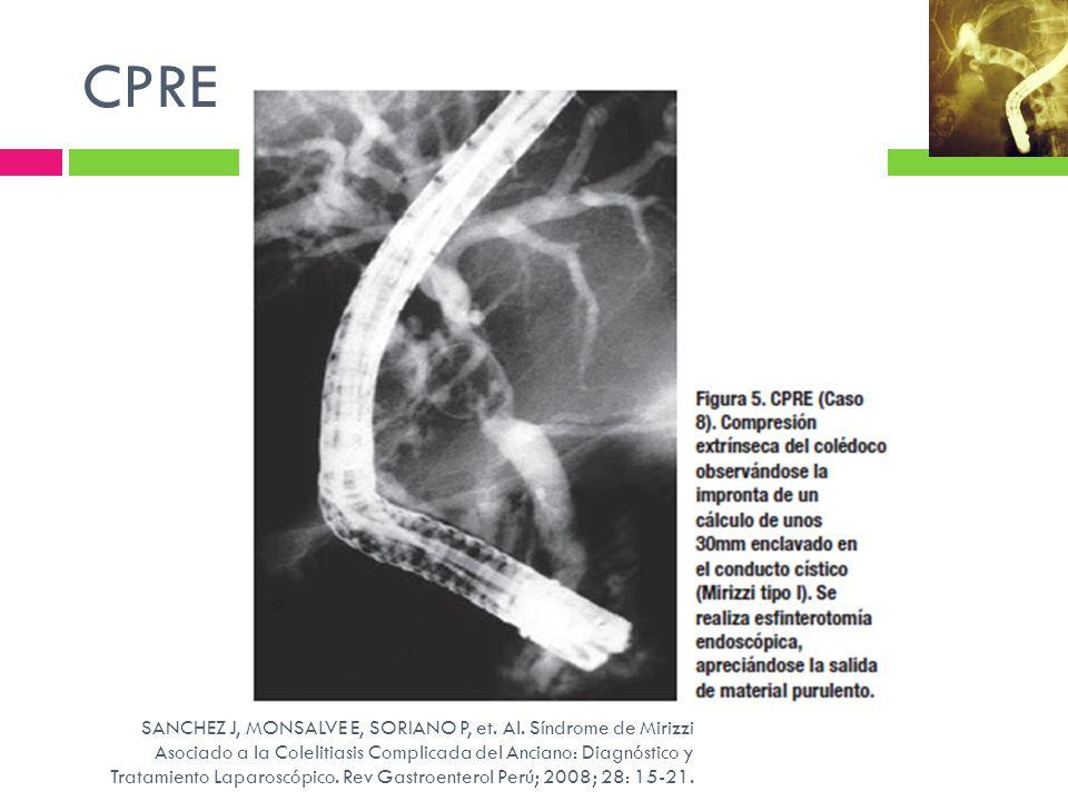 CPRE SANCHEZ J, MONSALVE E, SORIANO P, et. Al. Síndrome de Mirizzi Asociado a la Colelitiasis Complicada del Anciano: Diagnóstico y Tratamiento Laparo