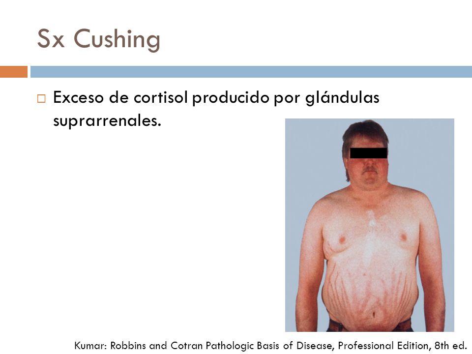 Sx Cushing Exceso de cortisol producido por glándulas suprarrenales. Kumar: Robbins and Cotran Pathologic Basis of Disease, Professional Edition, 8th