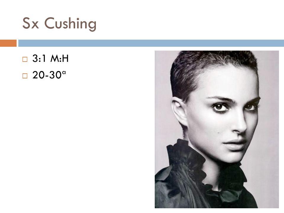 Sx Cushing 3:1 M:H 20-30ª