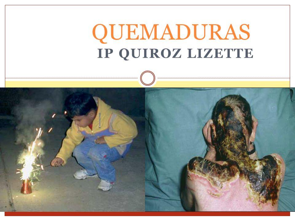 IP QUIROZ LIZETTE QUEMADURAS