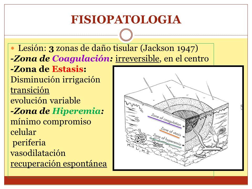 FISIOPATOLOGIA Lesión: 3 zonas de daño tisular (Jackson 1947) -Zona de Coagulación: irreversible, en el centro -Zona de Estasis: Disminución irrigació