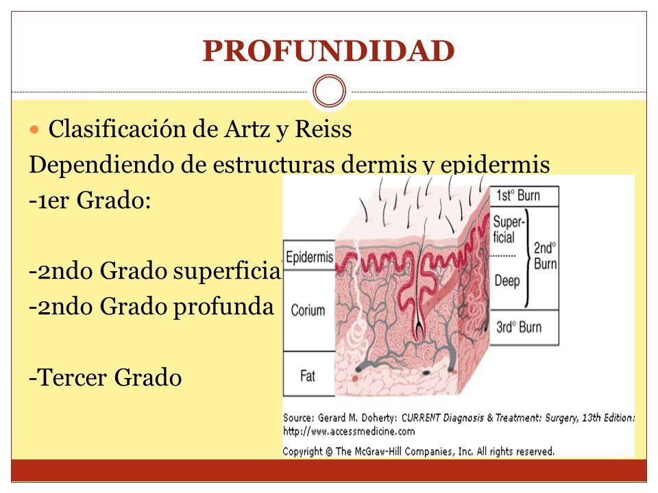 PROFUNDIDAD Clasificación de Artz y Reiss Dependiendo de estructuras dermis y epidermis -1er Grado: -2ndo Grado superficial -2ndo Grado profunda -Terc
