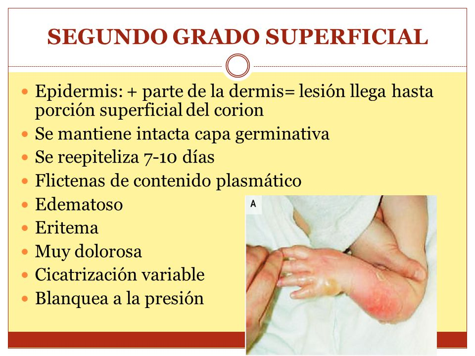 SEGUNDO GRADO SUPERFICIAL Epidermis: + parte de la dermis= lesión llega hasta porción superficial del corion Se mantiene intacta capa germinativa Se r