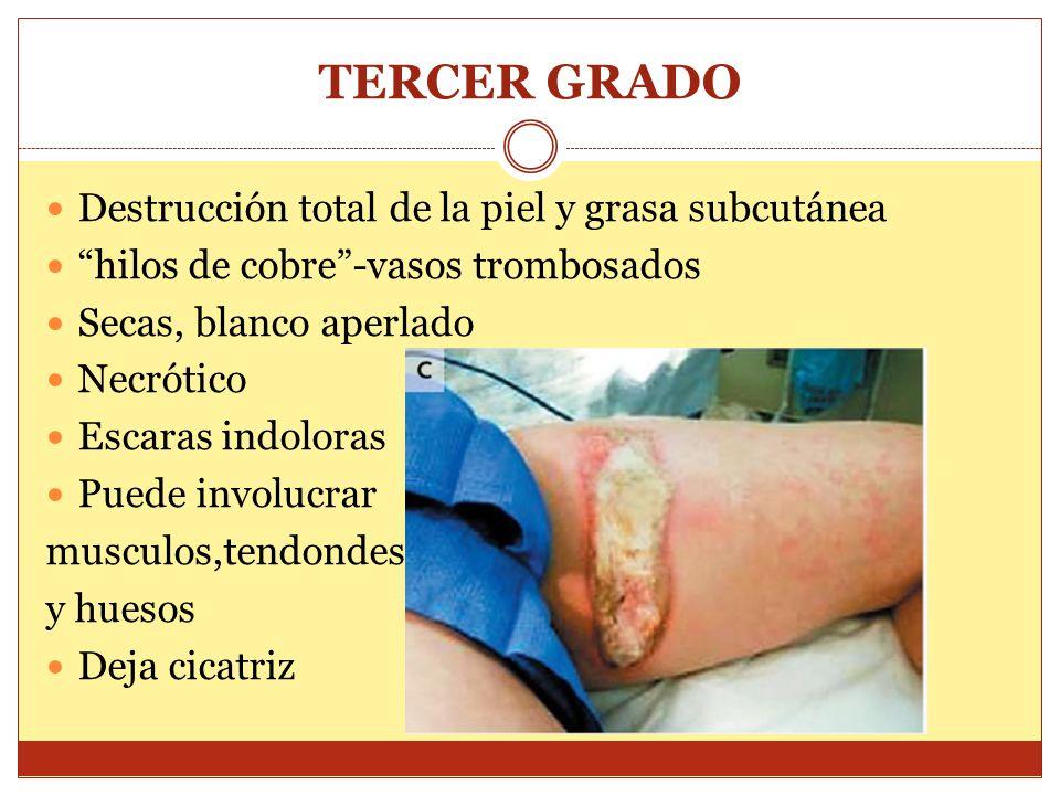 TERCER GRADO Destrucción total de la piel y grasa subcutánea hilos de cobre-vasos trombosados Secas, blanco aperlado Necrótico Escaras indoloras Puede