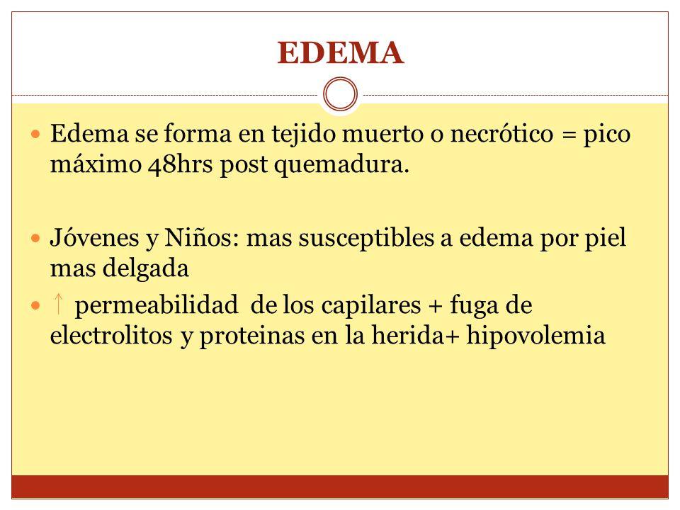 EDEMA Edema se forma en tejido muerto o necrótico = pico máximo 48hrs post quemadura. Jóvenes y Niños: mas susceptibles a edema por piel mas delgada p