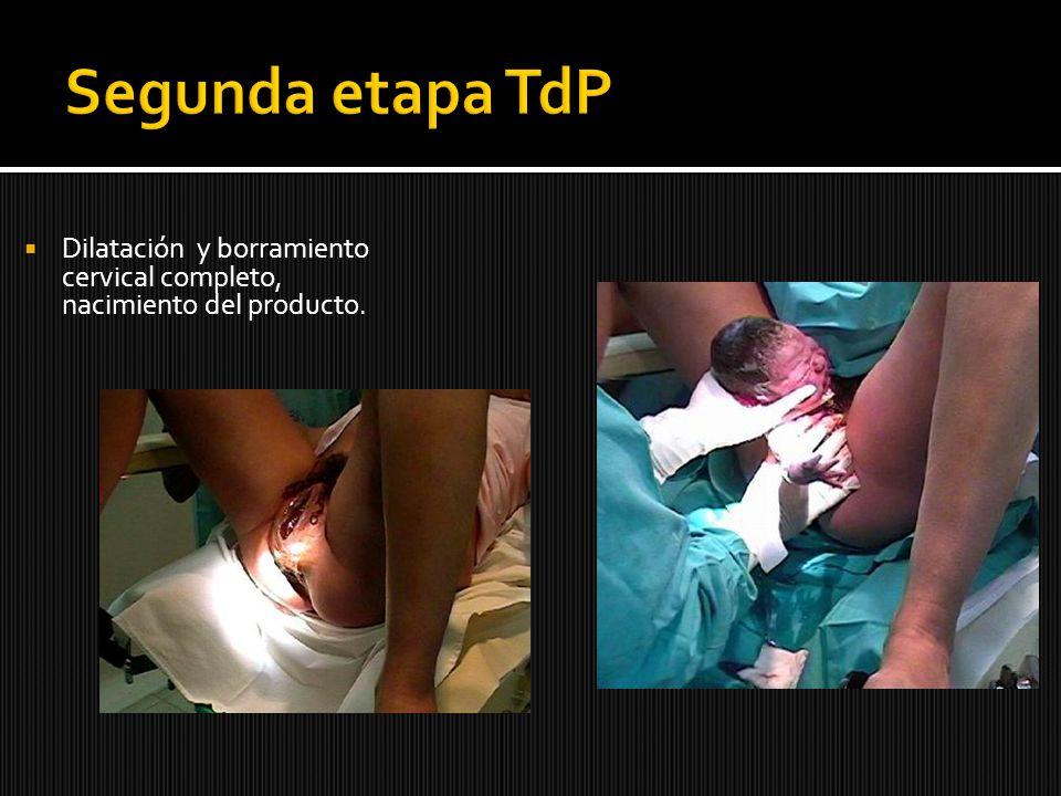 Dilatación y borramiento cervical completo, nacimiento del producto.