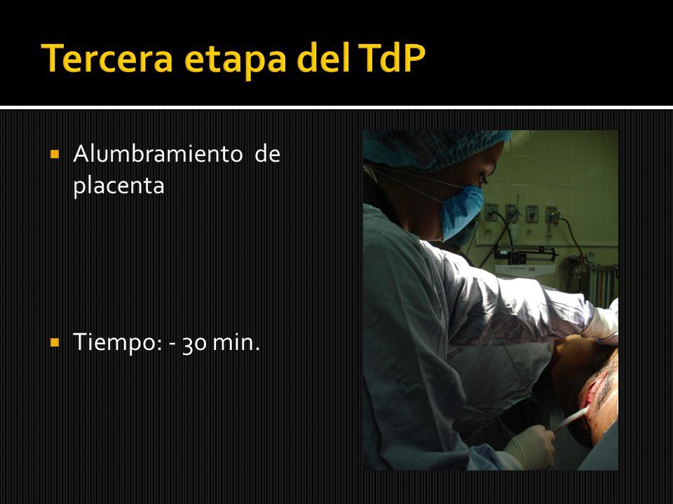 Alumbramiento de placenta Tiempo: - 30 min.
