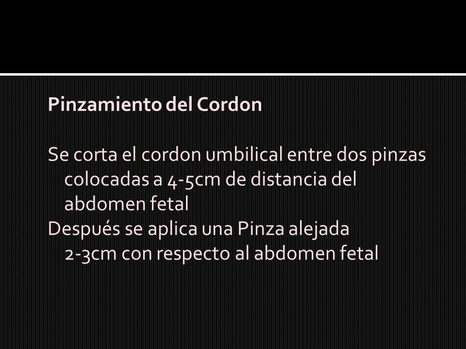 Pinzamiento del Cordon Se corta el cordon umbilical entre dos pinzas colocadas a 4-5cm de distancia del abdomen fetal Después se aplica una Pinza alej