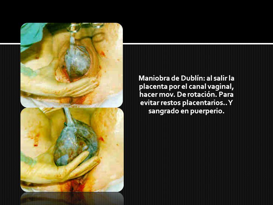 Maniobra de Dublín: al salir la placenta por el canal vaginal, hacer mov. De rotación. Para evitar restos placentarios.. Y sangrado en puerperio.