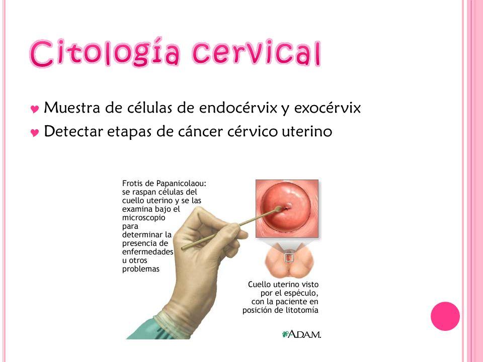 Muestra de células de endocérvix y exocérvix Detectar etapas de cáncer cérvico uterino
