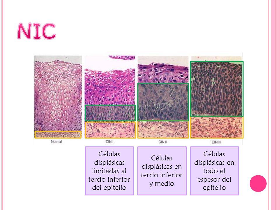 Células displásicas limitadas al tercio inferior del epitelio Células displásicas en tercio inferior y medio Células displásicas en todo el espesor de