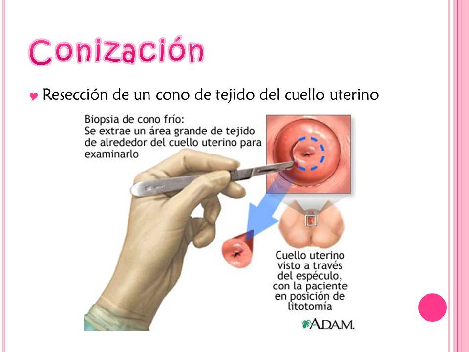 Resección de un cono de tejido del cuello uterino