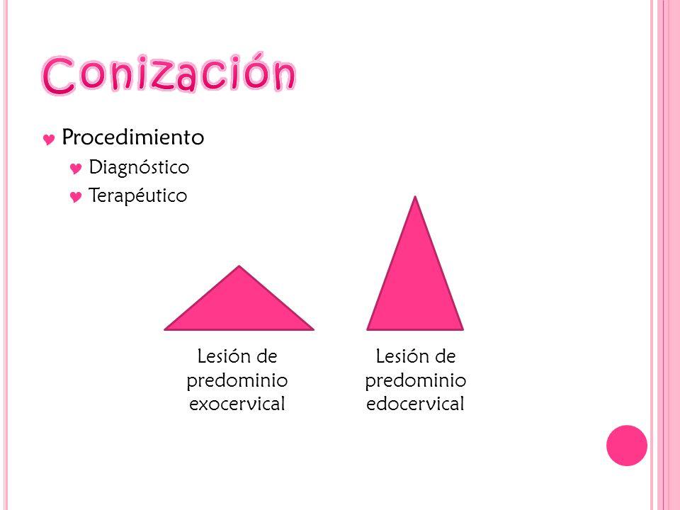 Procedimiento Diagnóstico Terapéutico Lesión de predominio exocervical Lesión de predominio edocervical