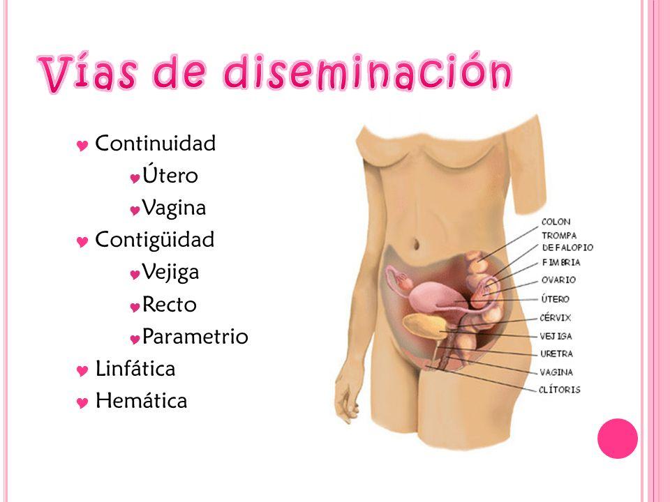 Continuidad Útero Vagina Contigüidad Vejiga Recto Parametrio Linfática Hemática