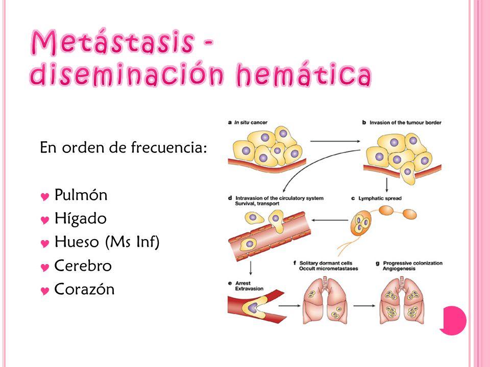 En orden de frecuencia: Pulmón Hígado Hueso (Ms Inf) Cerebro Corazón
