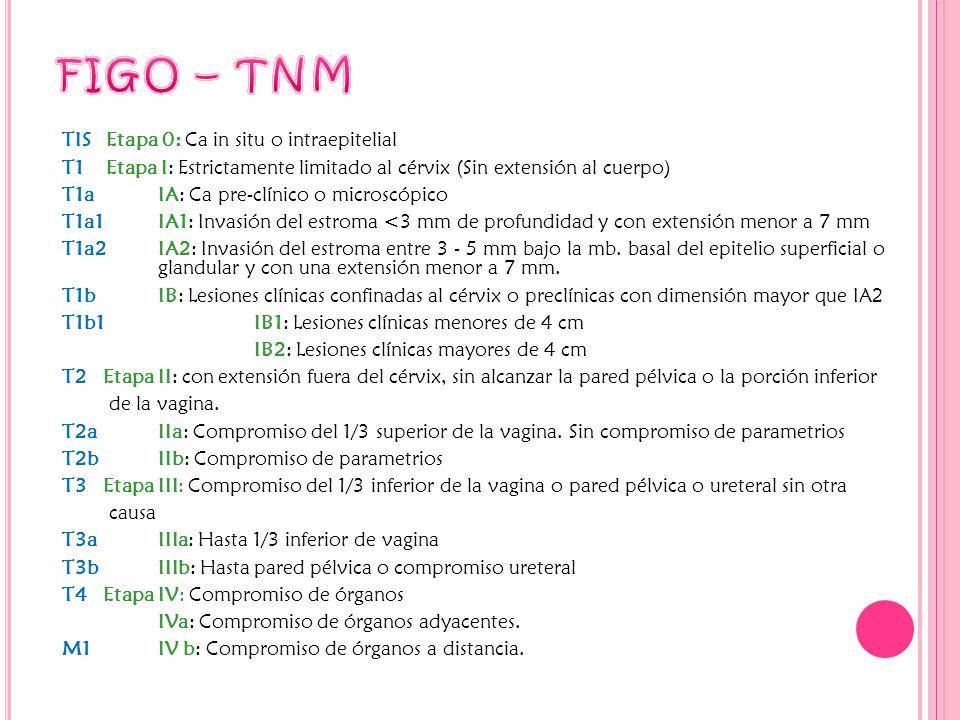 TIS Etapa 0: Ca in situ o intraepitelial T1 Etapa I: Estrictamente limitado al cérvix (Sin extensión al cuerpo) T1a IA: Ca pre-clínico o microscópico T1a1IA1: Invasión del estroma <3 mm de profundidad y con extensión menor a 7 mm T1a2IA2: Invasión del estroma entre 3 - 5 mm bajo la mb.