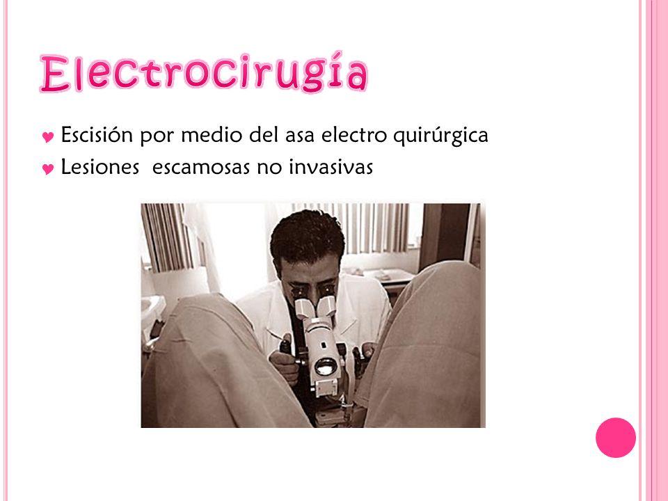 Escisión por medio del asa electro quirúrgica Lesiones escamosas no invasivas