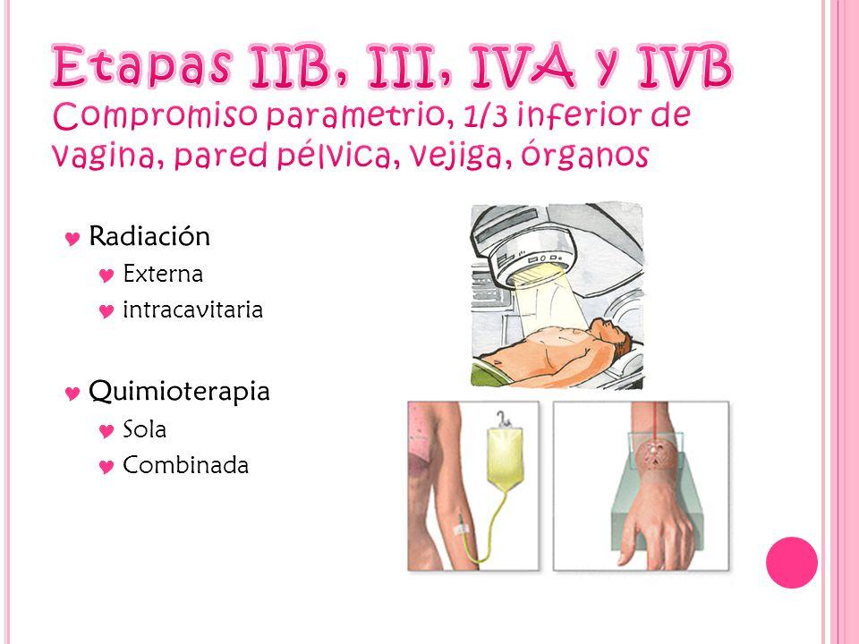 Radiación Externa intracavitaria Quimioterapia Sola Combinada
